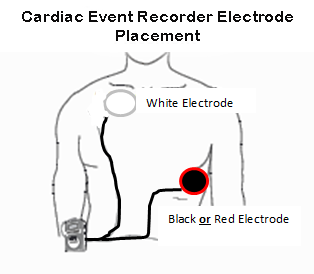 recorder_placement